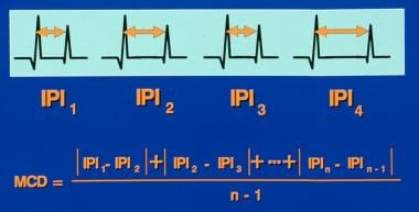 Single-fiber electromyography. Calculation of the