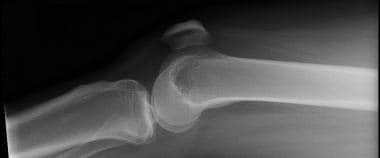 Lateral radiograph of patella with knee in near ex