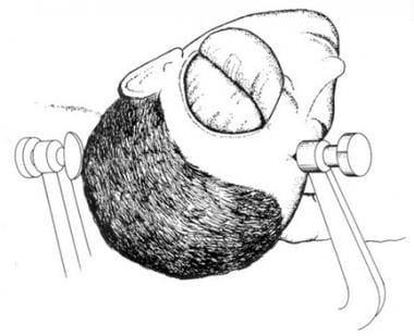 Pterional incision is made, exposing temporalis mu