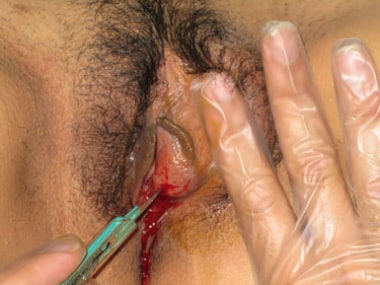 Incision of Bartholin abscess.