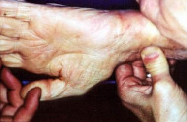 A preoperative Allen test can identify abnormal pa