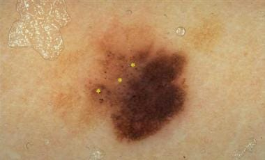 In situ melanoma with asymmetric color distributio