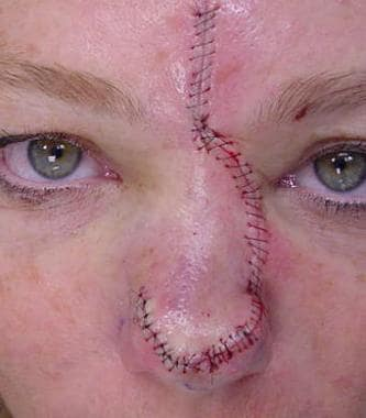 A dorsal nasal rotation flap was used to repair th