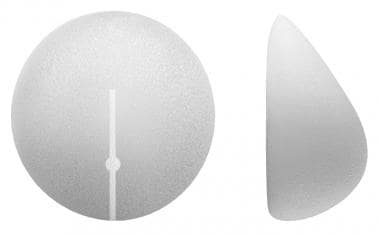 Sientra shaped round implants.