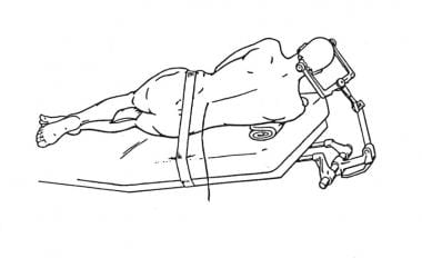 Lateral position for insertion of lumbar drain.