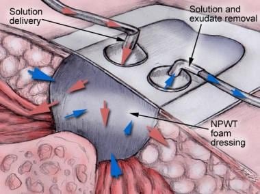 Wound receiving negative-pressure wound therapy (N