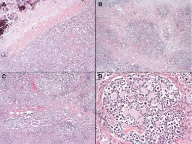 Ovarian dysgerminomas pathology. Dysgerminoma and