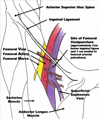 Femoral triangle anatomy.
