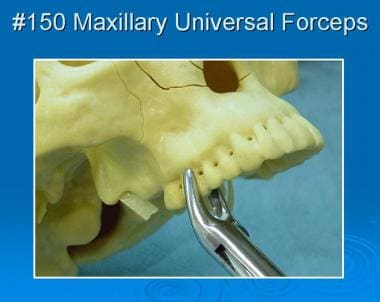 No. 150 maxillary universal forceps in place.