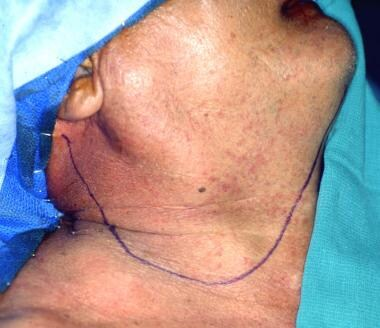 Apron incision used by the author for unilateral m