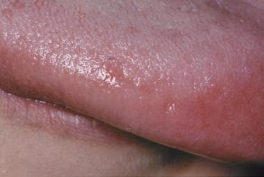 Close-up view of irritant contact stomatitis of th