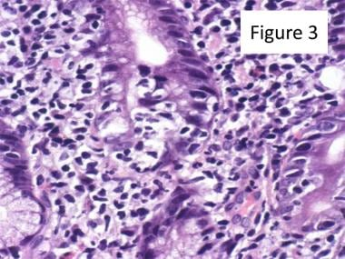 Marginal Zone B-cell Lymphoma. Lymphoepithelial le