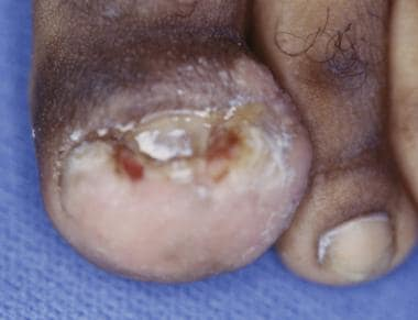 Onychocryptosis with paronychia of medial and late