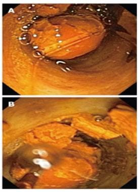 Cholangioscopic view of (A) bile duct stone and (B