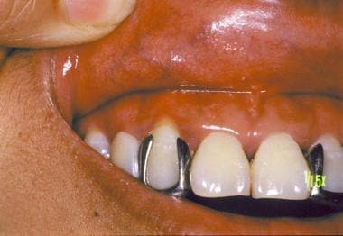 Allergic contact stomatitis on the gingiva in a pa