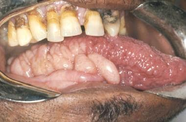Multiple neurofibromas on the tongue.