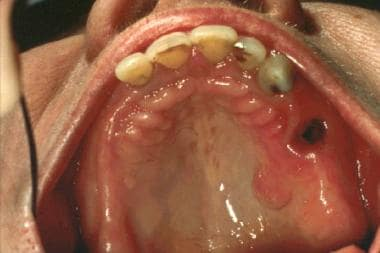 Solitary neurofibroma on the hard palate.