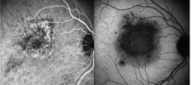 Acute retinal pigment epitheliitis: Indocyanine gr