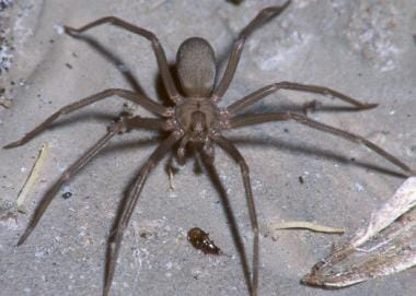 Typical appearance of a male brown recluse spider.