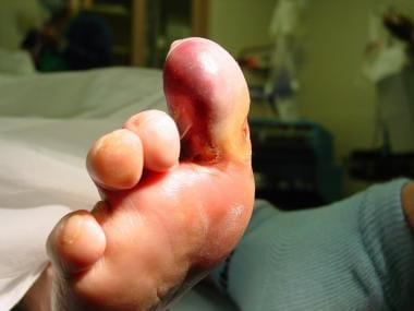 Early wet gangrene of hallux. This began secondary