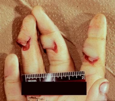 Defensive wounds of the hand/fingers.