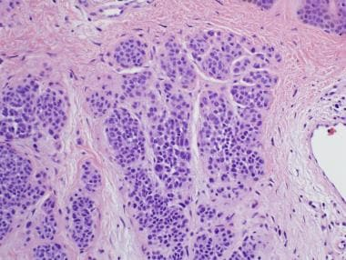 Histologic maturation of type A nevomelanoctyes to