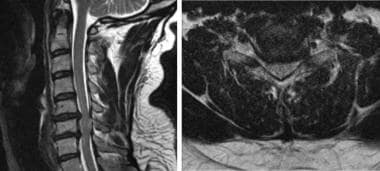 T2-weighted sagittal (left) and axial (right) MRI
