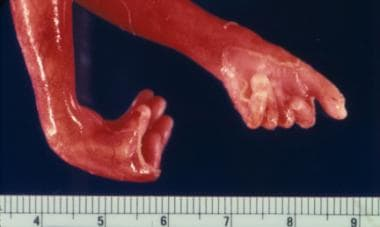This photo shows the hands of a fetus with trisomy