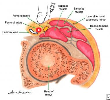 Femoral nerve block technique (cross-sectional vie