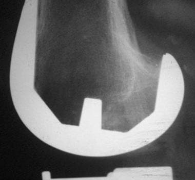 Radiograph of an uncemented, hydroxyapatite-coated