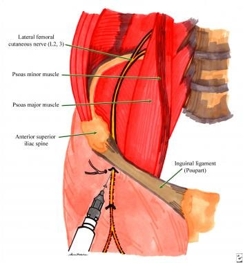 Lateral femoral cutaneous nerve block technique. S