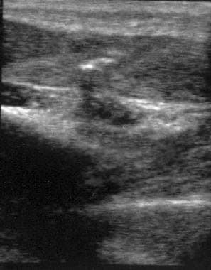 Ultrasound of remaining projectile foreign body fr