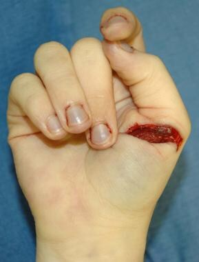 A defensive injury on the hand of a homicide victi
