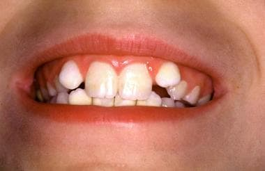 Defective denture with yellow spots on the enamel