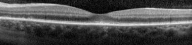 Spectral-domain optical coherence tomography (SD-O