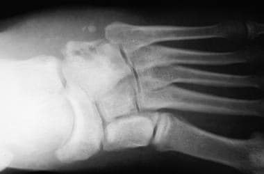 Radiographs of foot demonstrate development of ost