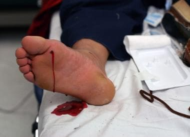 Patient's foot following nail removal. The patient