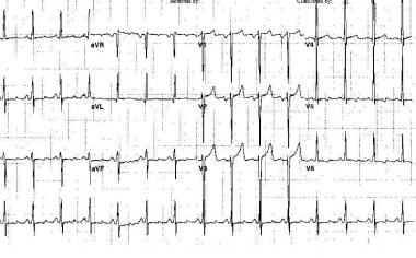 Electrocardiogram from a 47-year-old man with a lo
