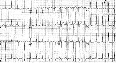 Electrocardiogram from a 46-year-old man with long