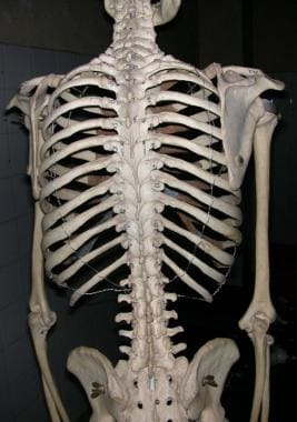 View of human skeleton from behind, showing rib ca