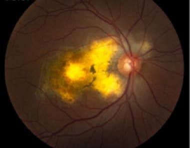 Serpiginous choroiditis (late stage): Color fundus
