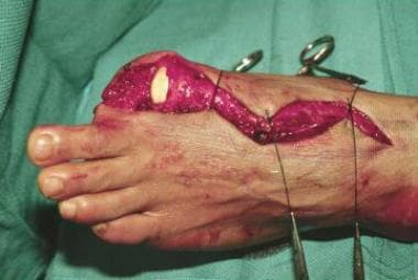 Surgical amputation of a left big toe.