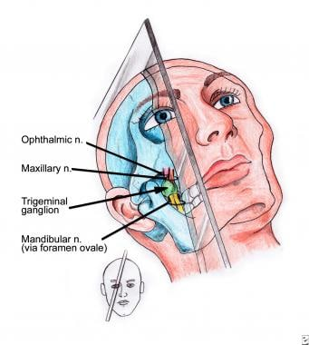 Anatomy and needle-insertion plane of trigeminal g