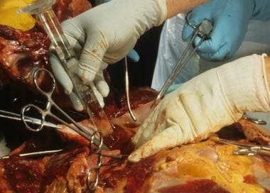 Checking for an air embolism at autopsy. In this p