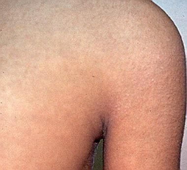 Multiple skin-colored shiny papules associated wit