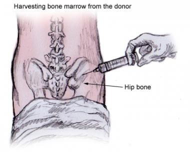Bone marrow stem cells are aspirated from the post