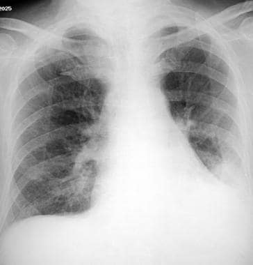 Aspiration pneumonia in an 84-year-old man in gene