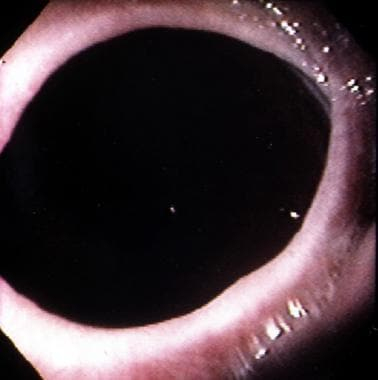 Schatzki Ring. Endoscopic appearance of the distal