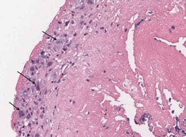 Infectious endocarditis, surface of valve leaflet