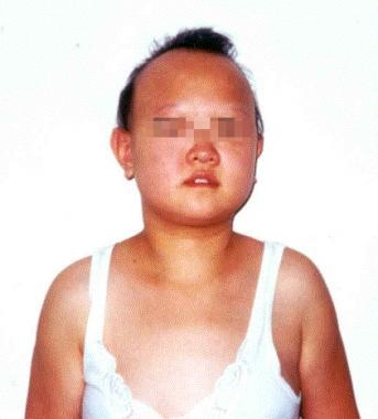 Photograph of a 16-year-old girl with complicated